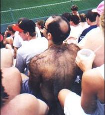 man with hairy back